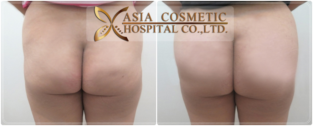 Buttocks Implants Before After