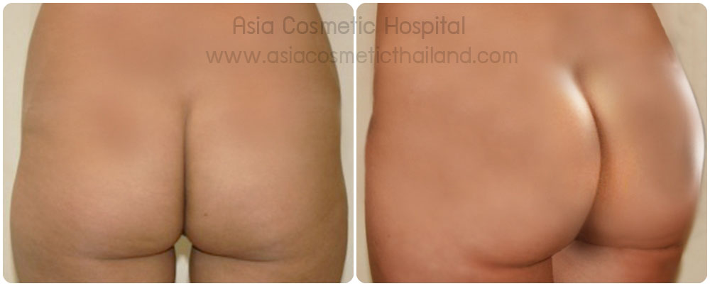 Buttocks Implants, buttock augmentation