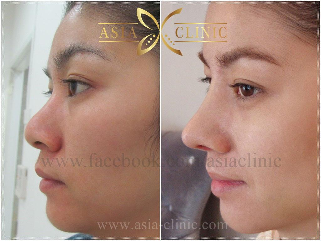 lip augmentation cost