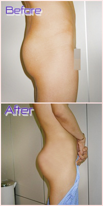 buttock augmentation, buttocks implants in thailand