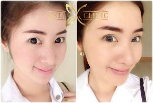 eyelid surgery thailand