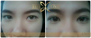 eyelid surgery upper