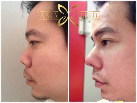 The Best Nose Augmentation,Rhinoplasty in Thailand - Dr ...