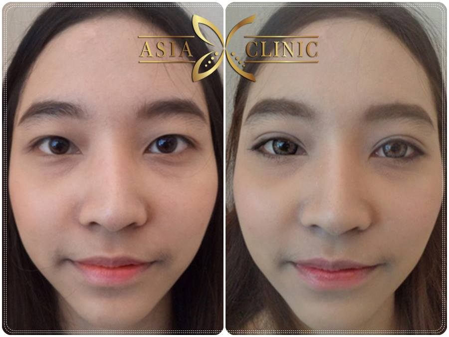 Asian Double Eyelid Surgery Articles 10