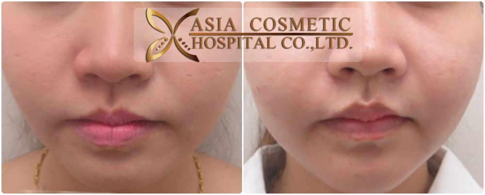 chin implants before after