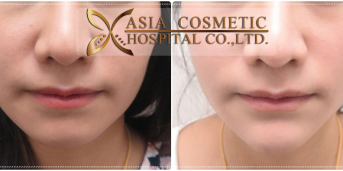 Chin Augmentation Before and After Photos