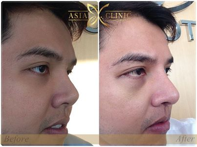 male rhinoplasty - nose surgery