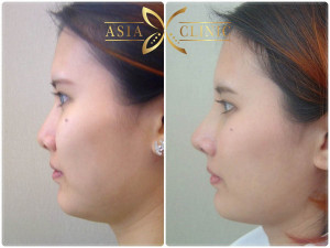 revised nose augmentation