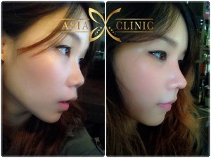 revised rhinoplasty