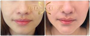 thailand chin augmentation