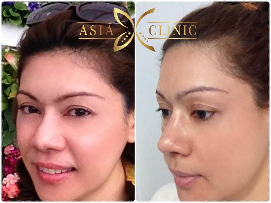 alar reduction surgery - revised nose augmentation