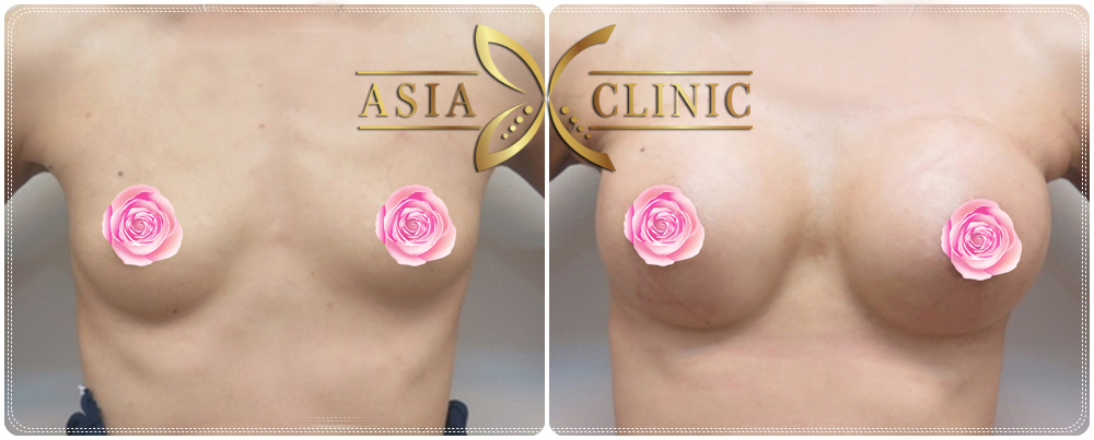 Breast Augmentation Before After