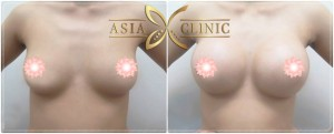 breast augmentation surgery in thailand