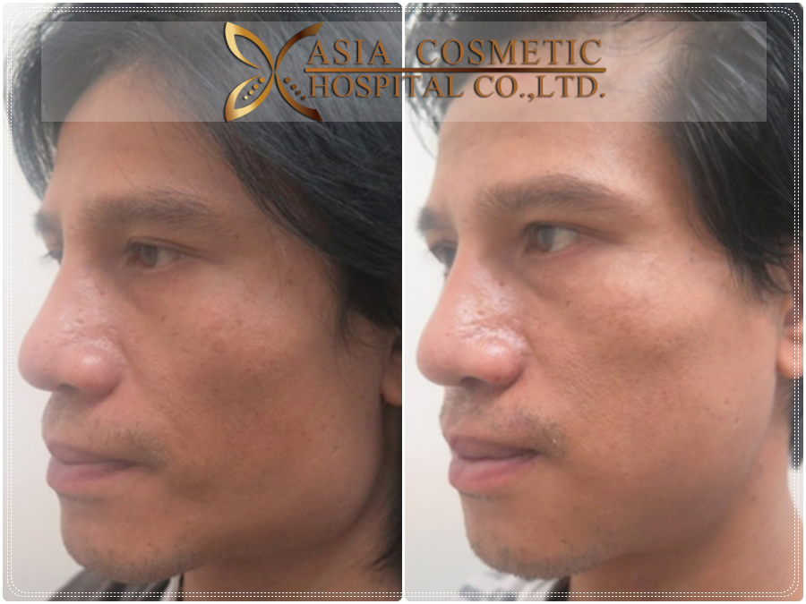 Jaw Reduction Thailand 2017