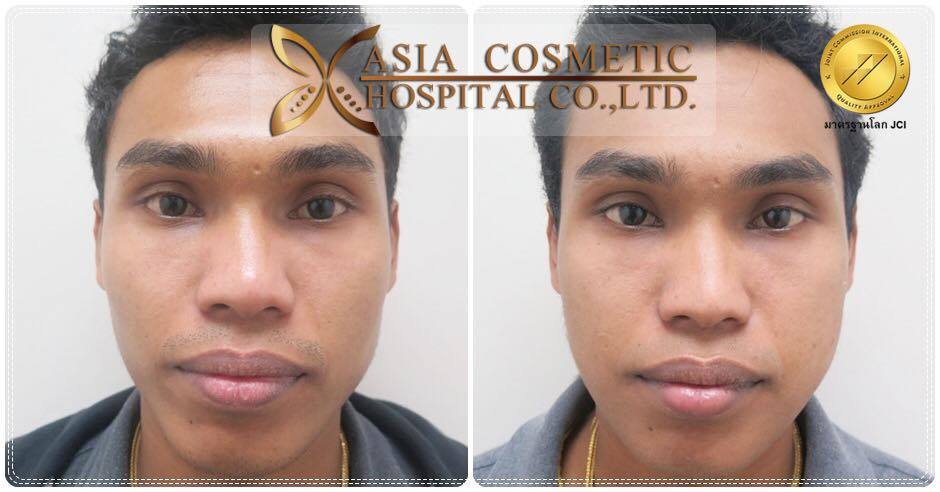 Jaw Reduction Thailand