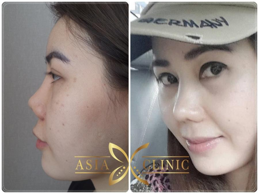 best nose surgery in thailand