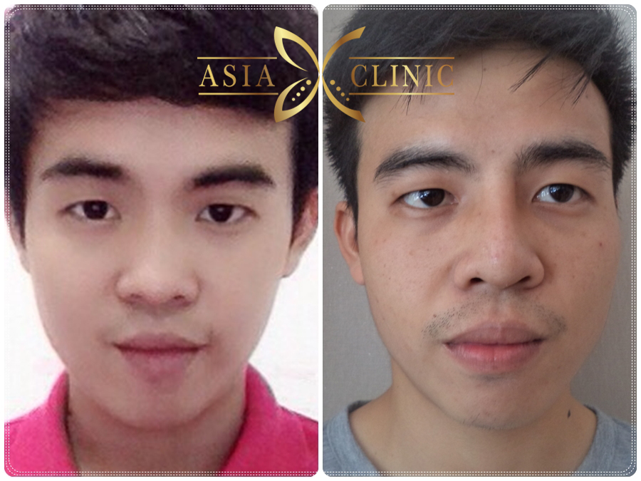 Remarkable topic asian nose rhinoplasty