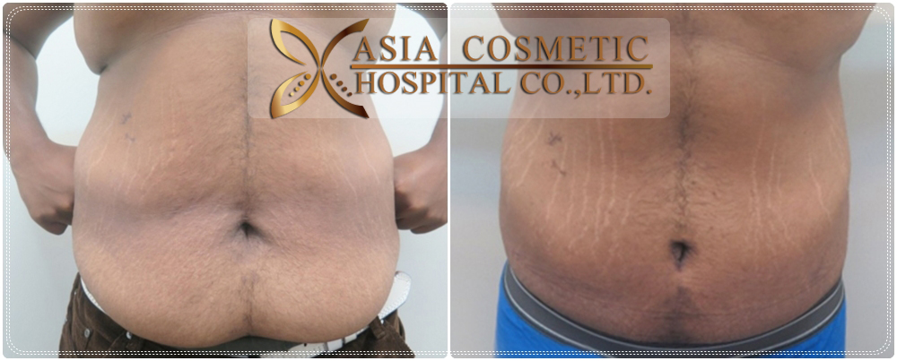 Vaser Liposuction