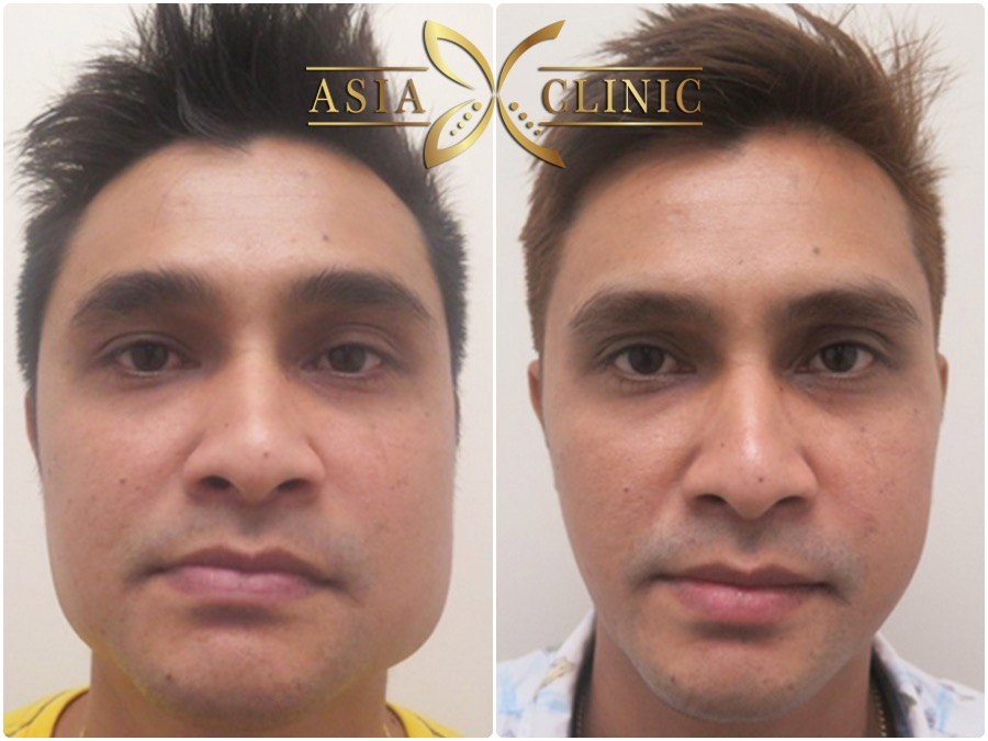 Cheekbone Reduction surgery thailand