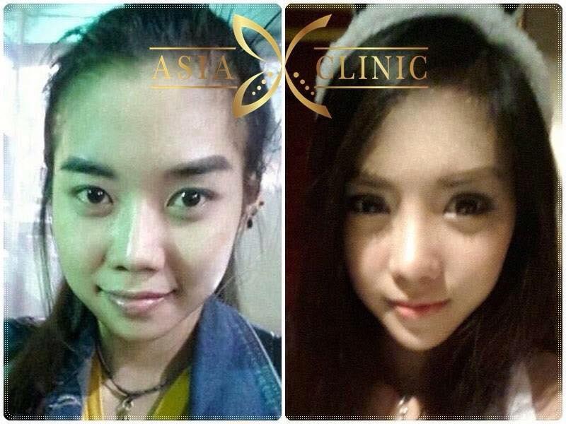 V line Thailand - V Shape Face