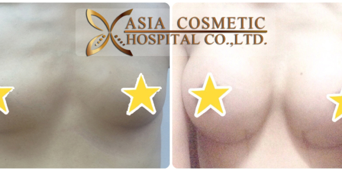 Breast Augmentation Breast Implants in Thailand