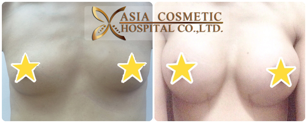 Best Breast Augmentation