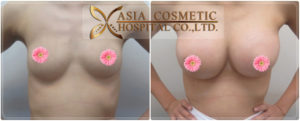 Breast Augmentation Thailand reviews