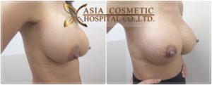 Breast Enlargement in Thailand