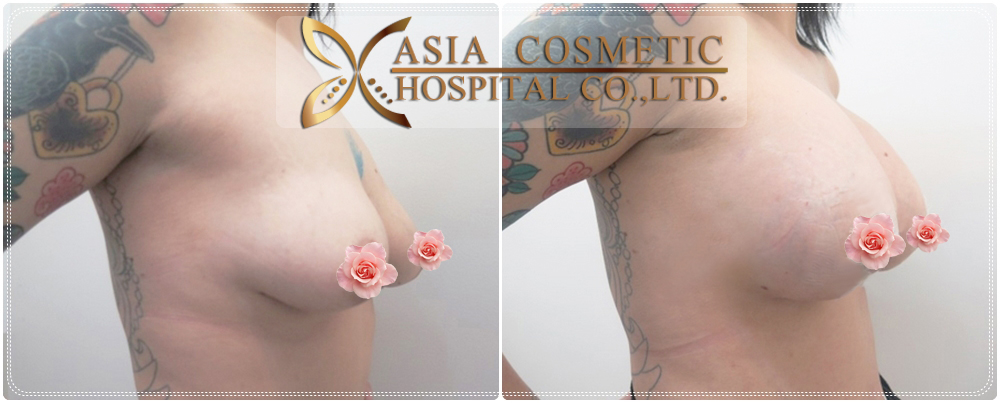 Thailand Breast Enlargement