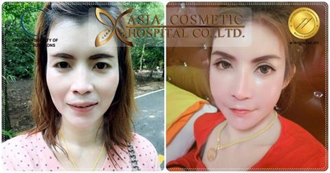 Cheekbone Reduction AsiaCosmeticHospital
