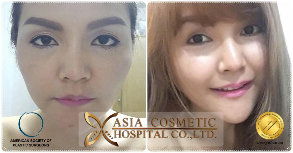 Cheekbone Reduction Surgery in Thailand