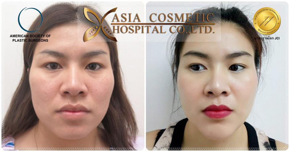 Thailand Cheekbone Reduction