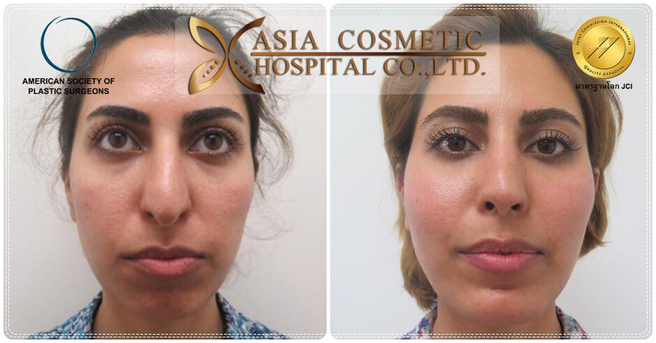 cheek augmentation Thailand